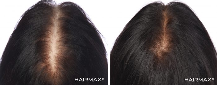 A female brunette's head before and after using hairmax 82