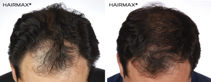 a man's head with curly hair before and after using hairmax 82