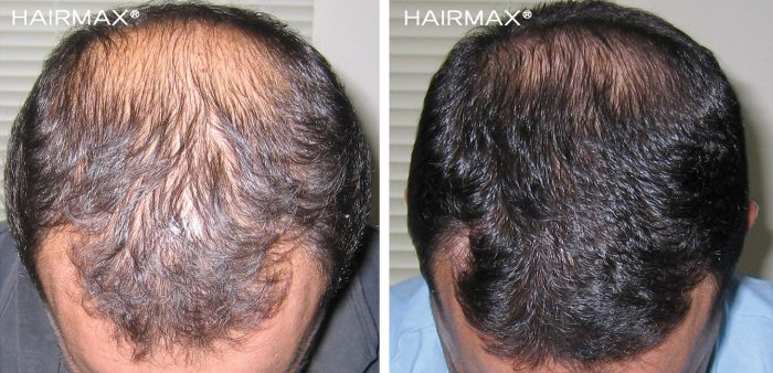 a man head with black hair before and after using hairmax 82