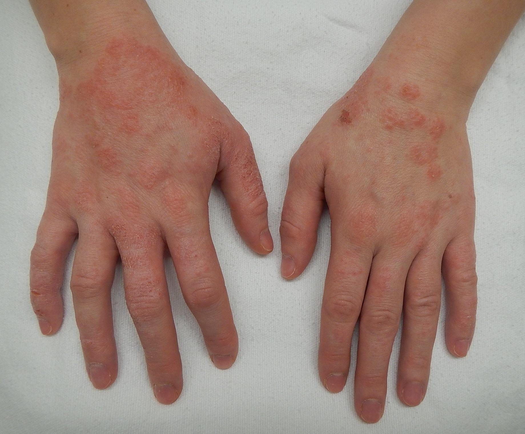 Dermatitis2015