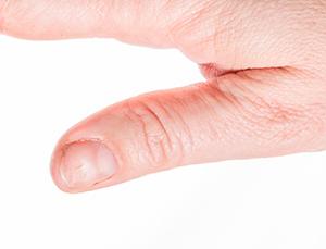 spoon nail
