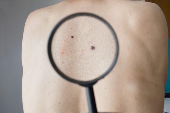 mole on back