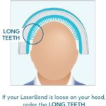 Laserband Teeth Sizes_long