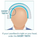 Laserband Teeth Sizes_short