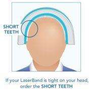Laserband Teeth Sizes_short